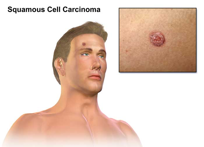 A depiction of squamous cell skin carcinoma.