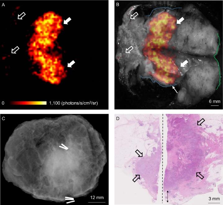 Cerenkov Luminescence Imaging for breast conservation surgery, King's College London.