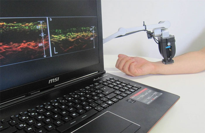 Handheld device for scanning tissue of psoriasis patients, Helmholtz Zentrum Munich and TUM.