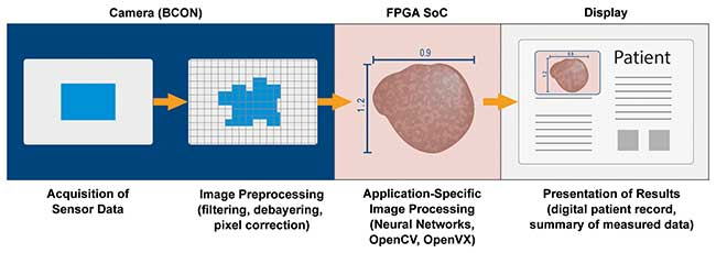 A typical image processing pipeline in medical embedded vision devices contains four key components.