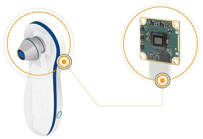 A typical embedded vision system in medical devices