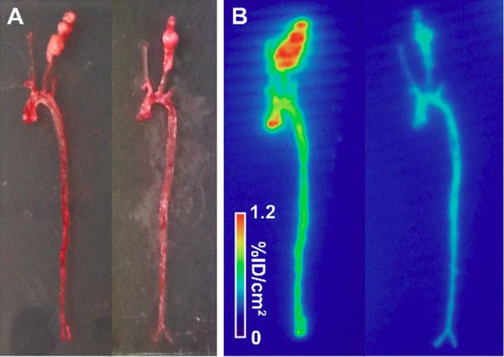 Novel imaging tracer for detecting risk of abdominal aortic aneurysm, Yale University.