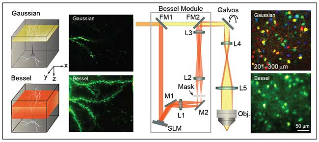 Comparison of Gaussian and Bessel imaging of a mouse dendritic spine