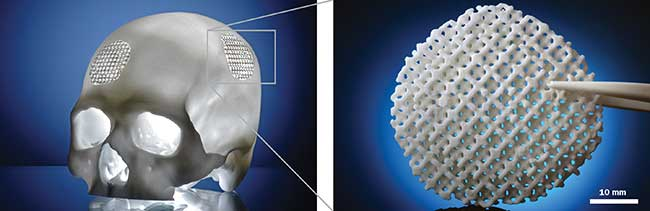A biodegradable patient-specific cranial implant demonstrator was made by laser sintering from polylactide/calcium carbonate composite powder on the customized Formiga P 110 machine.