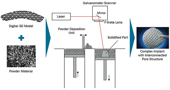 Schematic of laser sintering.