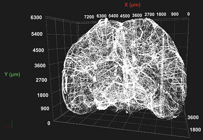 Maximum intensity projection of the vasculature within a whole murine brain.
