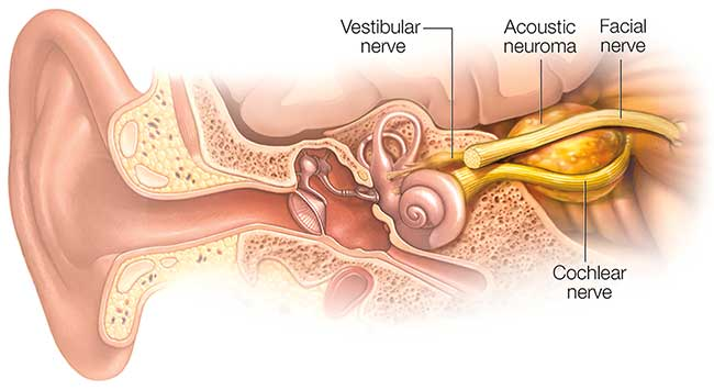 As a typical acoustic neuroma enlarges, it puts pressure on both the facial and cochlear nerves.