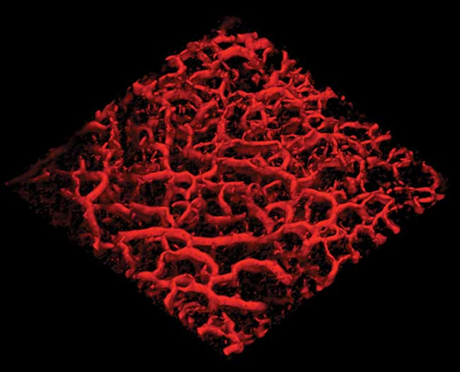 Blood vessel network in human skin (6 × 6 mm) imaged with VivoSight OCT using Dynamic OCT.