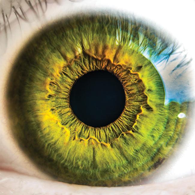 A human retina.