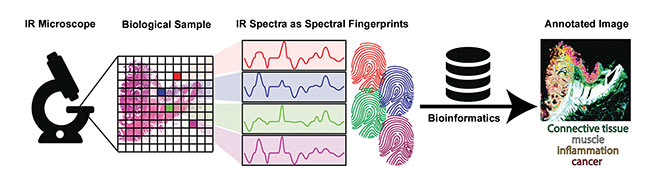 Figure 4. Label-free pathology using an IR microscope is able to annotate biological samples, such as human tissue, using classification of IR fingerprints. Powerful bioinformatics is required to deal with amounts of data. Courtesy of Ruhr-Universität Bochum.