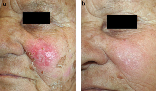 Figure 3. Example of a superficial basal cell carcinoma (BCC) at the left cheek (a) and the clinical aspect presented 30 days after two sessions of photodynamic therapy (PDT), with 20 percent methyl-aminolevulinate (MAL) cream and irradiation at 630 nm and 150 J/cm2. Courtesy of Dr. Ana Gabriela Salvio/Amaral Carvalho Hospital.