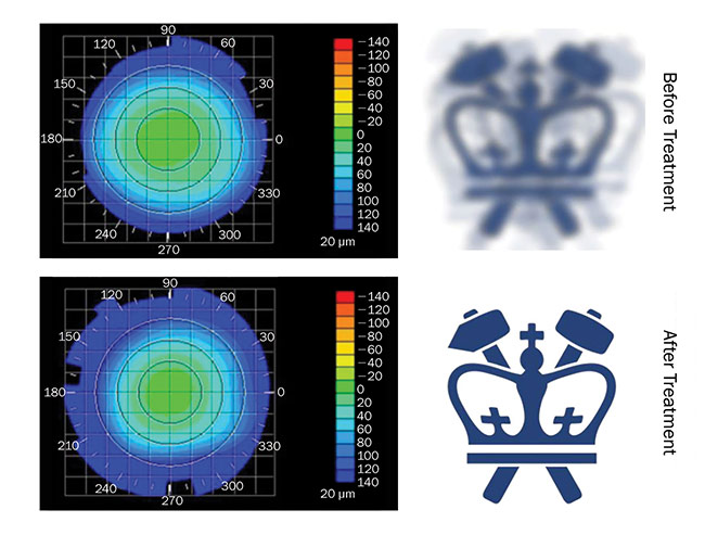 Figure 1. Columbia University's Sinisa Vukelic deployed a pulse from a femtosecond oscillator to strengthen corneal proteins. Corneal topography before (top) and after treatment (bottom), paired with virtual vision that simulates the effects of induced refractive power change.