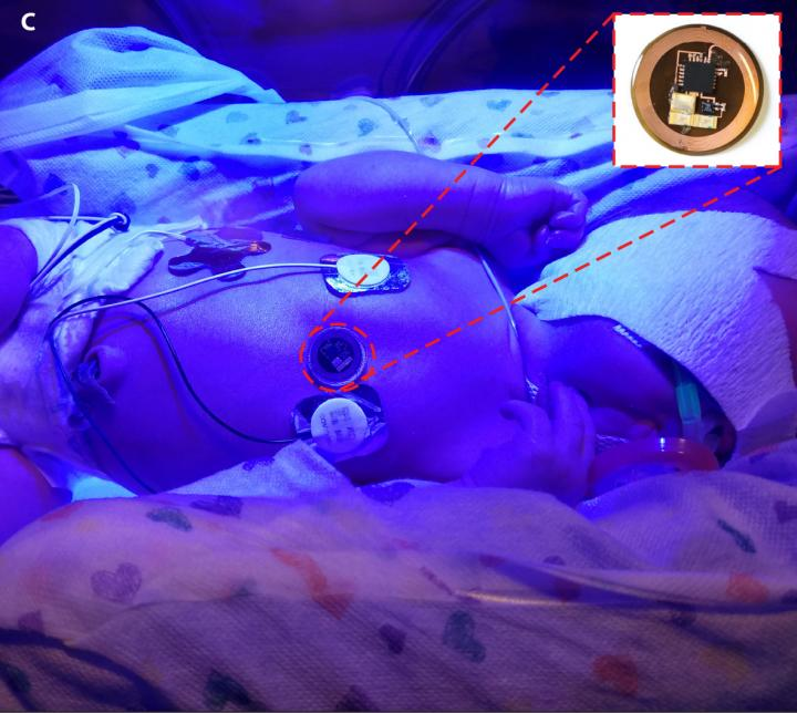 The sensors can be used to monitor infants undergoing phototherapy treatment. Courtesy of S.Y. Heo et al., Science Translational Medicine (2018).