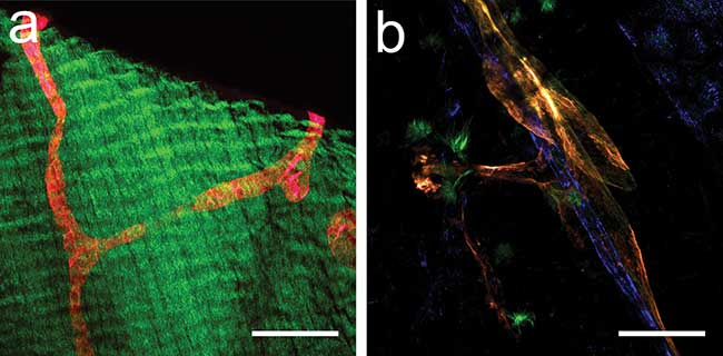 Two-photon laser scanning microscope (2P-LSM) images of a transgenic mouse expressing the tdTomato-protein under the control of a promoter that drives expression predominantly in lymphatic vessels.