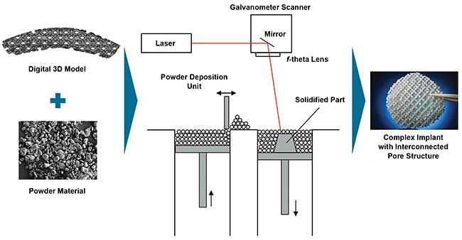 Schematic of laser sintering.