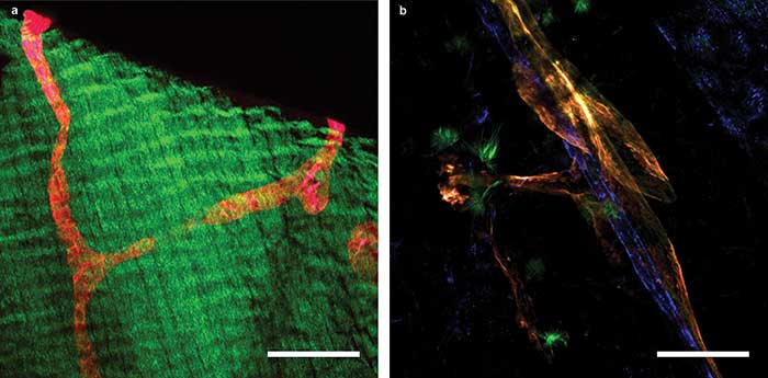 2P-LSM images of a transgenic mouse expressing the tdTomato protein under the control of a promoter that drives expression predominantly in lymphatic vessels.