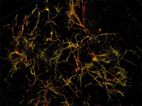Superresolution 3D nanoscope, Purdue University.