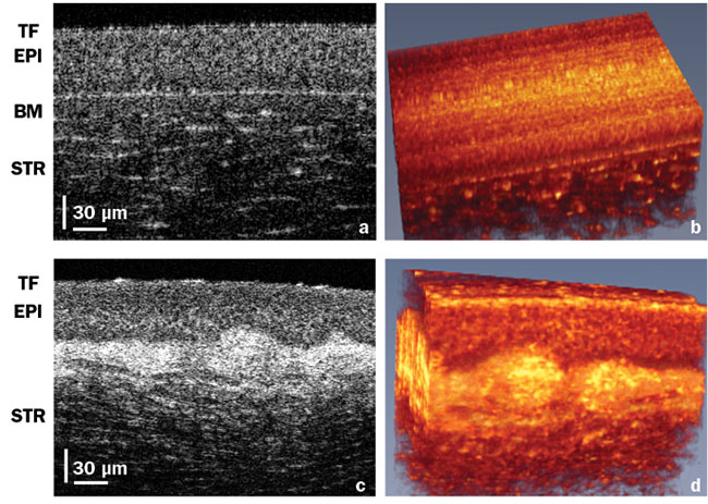 Advances in Optical Coherence Tomography