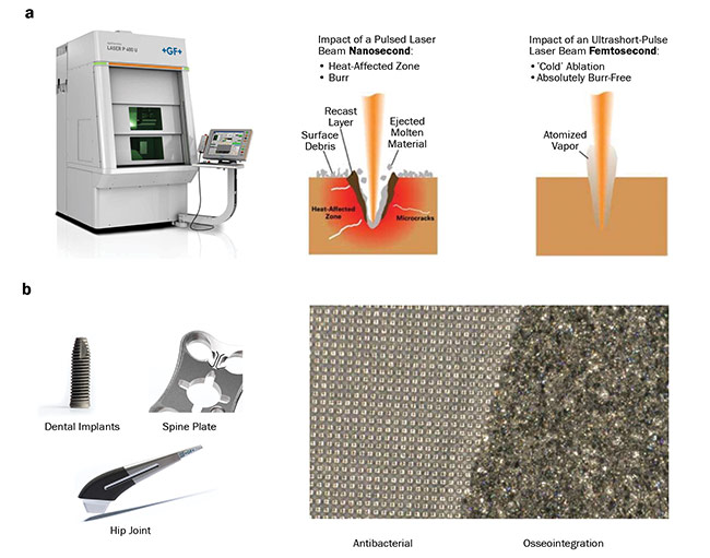 Figure 4. Laser-based texturing machinery (a, left) and a comparison of the impact of the laser beam of different lengths on the material surface (a, right). Possible applications of laser texturing for clinical use (b). Courtesy of Microrelleus SL.