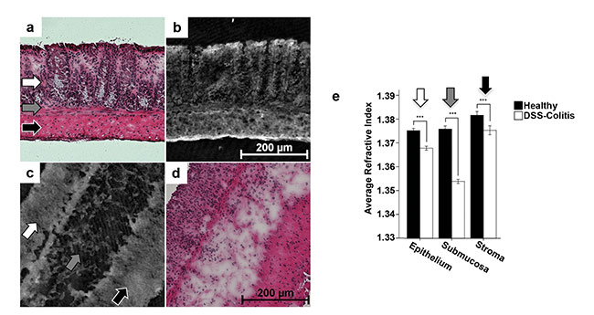 Figure 4. Quantitative DHM phase images of unstained cryostat colonic sections of healthy and colitic C57Bl/6 WT mice with inflamed colon (b, c). Corresponding H&E-stained samples (a, d). Analysis of the refractive index in various tissue layers (white arrow: epithelium; gray arrow: submucosa; black arrow: stroma) revealed a significant tissue density decrease of inflamed tissue areas (e). ***Statistical significance. Adapted with permission from Reference 9.