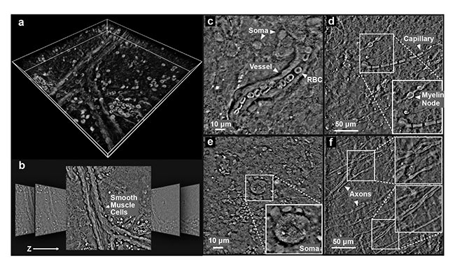 Figure 4. qOBM images from freshly excised but otherwise unaltered whole mouse brain. The 3D volumetric rendering of the brain using maximum intensity projection (a). Representative images from the stack (lateral dimensions: 250 × 250 µm) (b). qOBM images highlighting various cellular and subcellular structures (c-f). These images were taken 50 to 100 µm into the cortex. RBC: red blood cell. Reprinted with permission from Reference 8/The Optical Society (OSA).