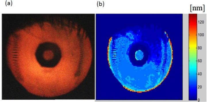 The Tear Film Imager captures a raw image (a) and also generates a thickness map (b) derived from the color information at each pixel. This can be used to distinguish the tear film's inner layers. Courtesy of AdOM Advanced Optical Methods Ltd.