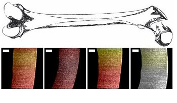 Researchers used a new endoscopic OCT system to visualize variances in pig cartilage thickness. The image shows a sketch of a femur and processed OCT images with thin regions shown in dark red and thicker regions more yellow and white. Scale bar is 250 µm. Courtesy of Evan T. Jelly, Duke University.