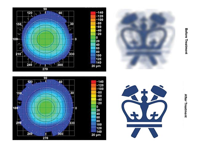 Figure 2. Columbia University's Sinisa Vukelic deployed a pulse from a femtosecond oscillator to strengthen corneal proteins. Corneal topography before (top) and after treatment (bottom), paired with virtual vision that simulates the effects of induced refractive power change. Courtesy of Sinisa Vukelic, Columbia University.