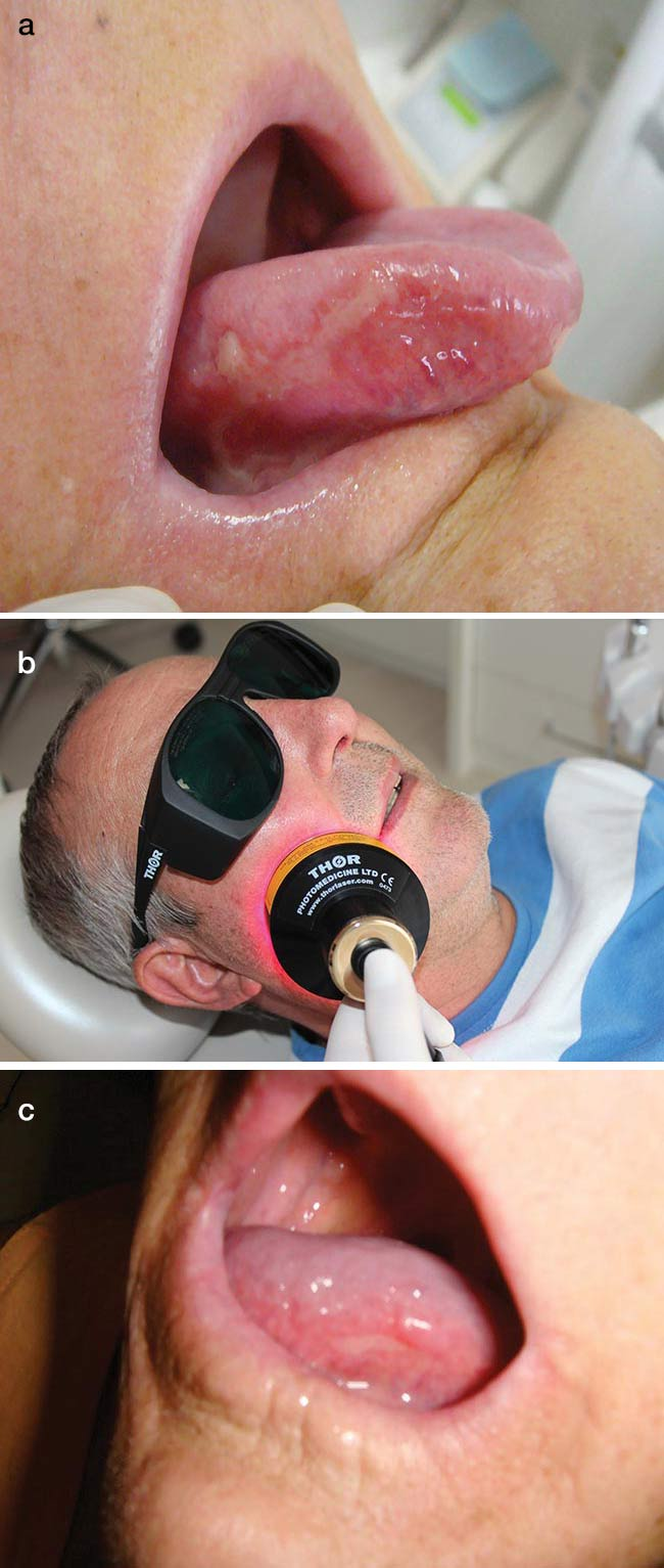 Figure 4. Oral mucositis is a side effect of high-dose chemotherapy and stem cell transplants that makes it painful for patients to eat or swallow (a). PBM with red and NIR LEDs is applied to a patient with the condition (b). PBM improves tissue repair and immune response to relieve symptoms (c). Courtesy of THOR Photomedicine Ltd.