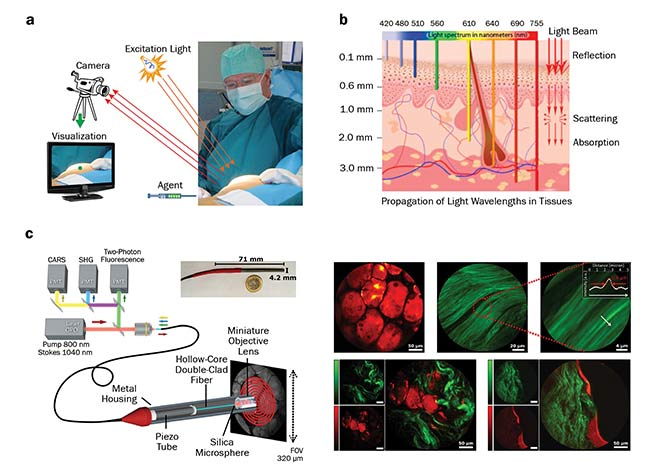 Figure 1. Use of optical imaging during surgery. The imaging system requires a light source, a detector or a camera, and a visualization system. A special agent is applied prior to imaging (a). Penetration depth of different wavelengths of light into the skin, and the light interactions within the tissue (b). Schematic of a multimode imaging system integrated in an endoscopic device (c, left); false-colored images of the human tissue, with fat highlighted in red and collagen in green (c, right). PMT: photomultiplier tube; CARS: coherent anti-Stokes Raman scattering; SHG: second-harmonic generation; OPO: optical parametric oscillator. Image a: courtesy of Leiden University Medical Center; b: courtesy of the University of Liège; c: adapted from Light: Science & Applications, https://doi.org/10.1038/s41377-018-0003-3.