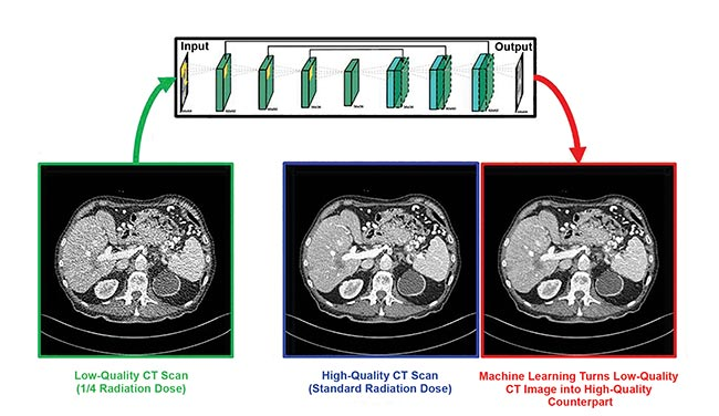 Biomedical computational imaging uses lower doses of ionizing radiation while still producing high-quality images. Deep learning makes quarter-dose CT images up to image quality at normal CT dose. CT denoising neural network by Rensselaer Polytechnic Institute, Sichuan University, and Harvard University. Courtesy of Ge Wang/Rensselaer Polytechnic Institute.