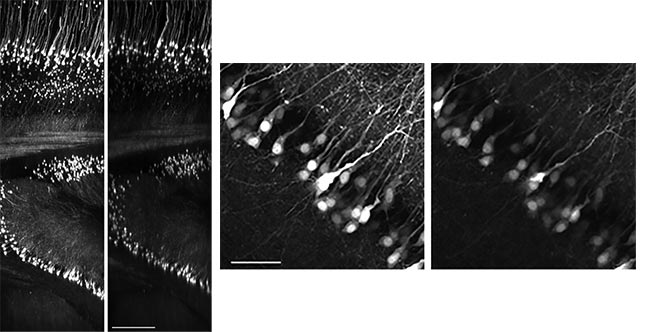 Figure 5. (Images on left) Mouse brain (Thy1-YFP-H mouse) cleared with ScaleA2. XZ image of a 4-mm z-stack: First image was acquired after determining the best correction collar setting; second image was acquired using an arbitrary correction collar position. Scale bar: 500 µm. (Images above) Maximum projection of XY images from 100-µm thickness at a depth of 2.7 mm: First image was acquired at the optimal correction collar position; second image was acquired using an arbitrary correction collar position. Scale bar: 100 µm. All images were acquired with 960-nm excitation at the same laser power through an Olympus FV30-AC10SV TruResolution objective lens (10×, 0.6 NA, 8-mm working distance, multi-immersion). Courtesy of Hiromu Monai, Hajime Hirase, and Atsushi Miyawaki/RIKEN BSI-Olympus.
