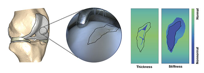 Figure 3. Spectral mapping of cartilage defect and surroundings to determine cartilage thickness and stiffness. The evaluation would provide surgeons with information about the compromised or nonnormal tissue requiring surgical intervention. Courtesy of Biophysics of Bone and Cartilage/University of Eastern Finland.