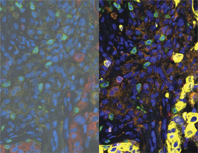 Multiplex immunofluorescence for evaluation of the tumor immune microenvironment (TIME). Seven-color TSA (tyramide signal amplification) staining of breast cancer showing the original multispectral 'mixed' image (left) and the unmixed pseudocolor image (right) generated using Vectra 3.0 multispectral microscope and inForm analysis. Pseudocolor key (right): blue: DNA; yellow: keratin; green: CD3; orange: CD68; white: PD1; red: PDL1; magenta: CD8. Courtesy of Hidetoshi Mori/Borowsky Lab/UC Davis and the Center for Genomic Pathology.