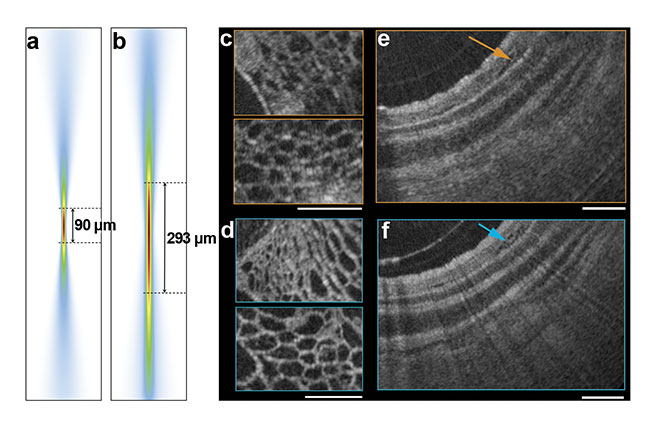 Figure 3. The calculated imaging point spread function predicts substantially increased imaging depth of focus (>threefold) for the nano-optic endoscope (a) compared to that of an achromatic lens with the same lateral resolution (b). A comparison of the imaging quality of the nano-optic endoscope with that of a ball lens catheter (c-f). Courtesy of Hamid Pahlevaninezhad and Yao-Wei Huang.