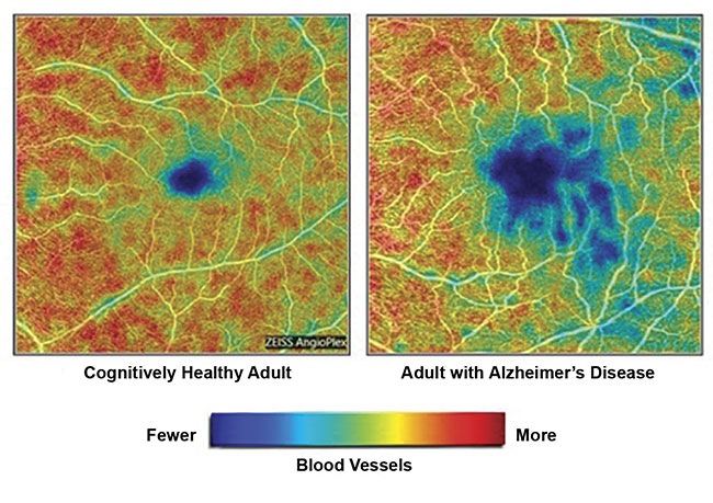 Figure 2. Images from a Duke University study show the loss of blood vessels in the retina of an adult with AD (right) versus an adult with a healthy brain. Courtesy of Duke Eye Center.