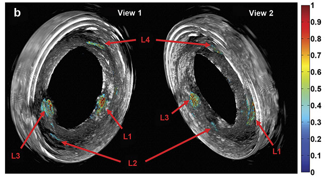 Purely 3D IVUS views (a) and co-registered 3D IV-DPAR/IVUS views of the swine artery phantom (b). In the co-registered images, location and detailed depth distribution of artificial plaques were color-coded on the gray-scaled IVUS background. L1-4: artificial plaques; H: plastic holder. Courtesy of Andreas Mandelis.