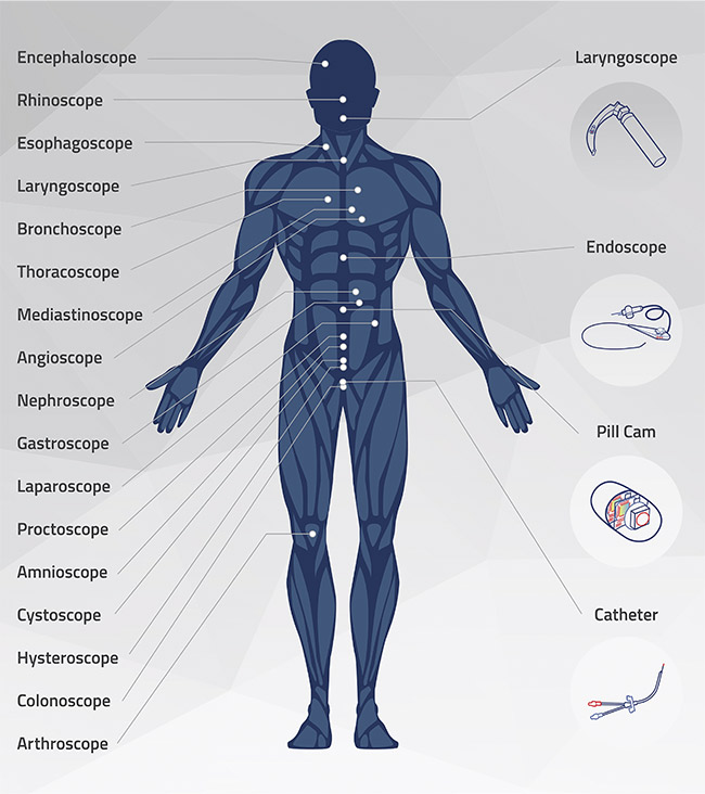 Different types of endoscopes target specific areas of the human body. Courtesy of OmniVision.