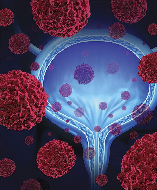 A conceptual image of a bladder with microscopic malignant cells spreading throughout the human body. Courtesy of Lightspring/Shutterstock.com.