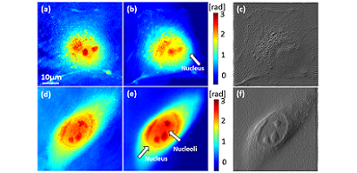 Synthetic Aperture Phase Microscopy Enables Subcellular Imaging