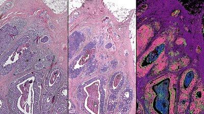 Hybrid Microscope Improves Tissue Pathology