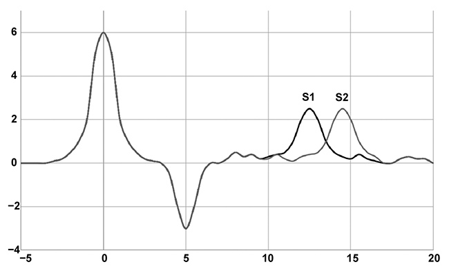 Figure 4. Representative terahertz spectra of a blank, Sample 1 (S1), and Sample 2 (S2). The graph shows the shift in first absorption based on tablet thickness or porosity differences. Courtesy of TeraView Ltd.