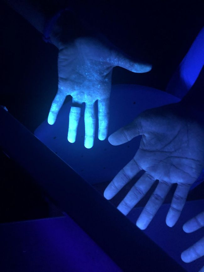 Using ultraviolet light, researchers discovered the presence of fluorescent solution on the health care worker's skin, which represented an exposure to the contagion and indicated that they made an error while putting on or taking off their PPE. Courtesy of Rami A. Ahmed, D.O.