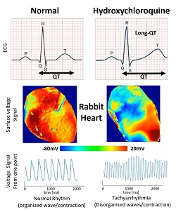 Images show the voltage surface on a rabbit heart with and without HCQ. Without the drug (normal) the electrical activation spreads homogeneously, while with HCQ, waves propagate unevenly, generating complex spatiotemporal patters and arrhythmias. Courtesy of Georgia Tech School of Physics.