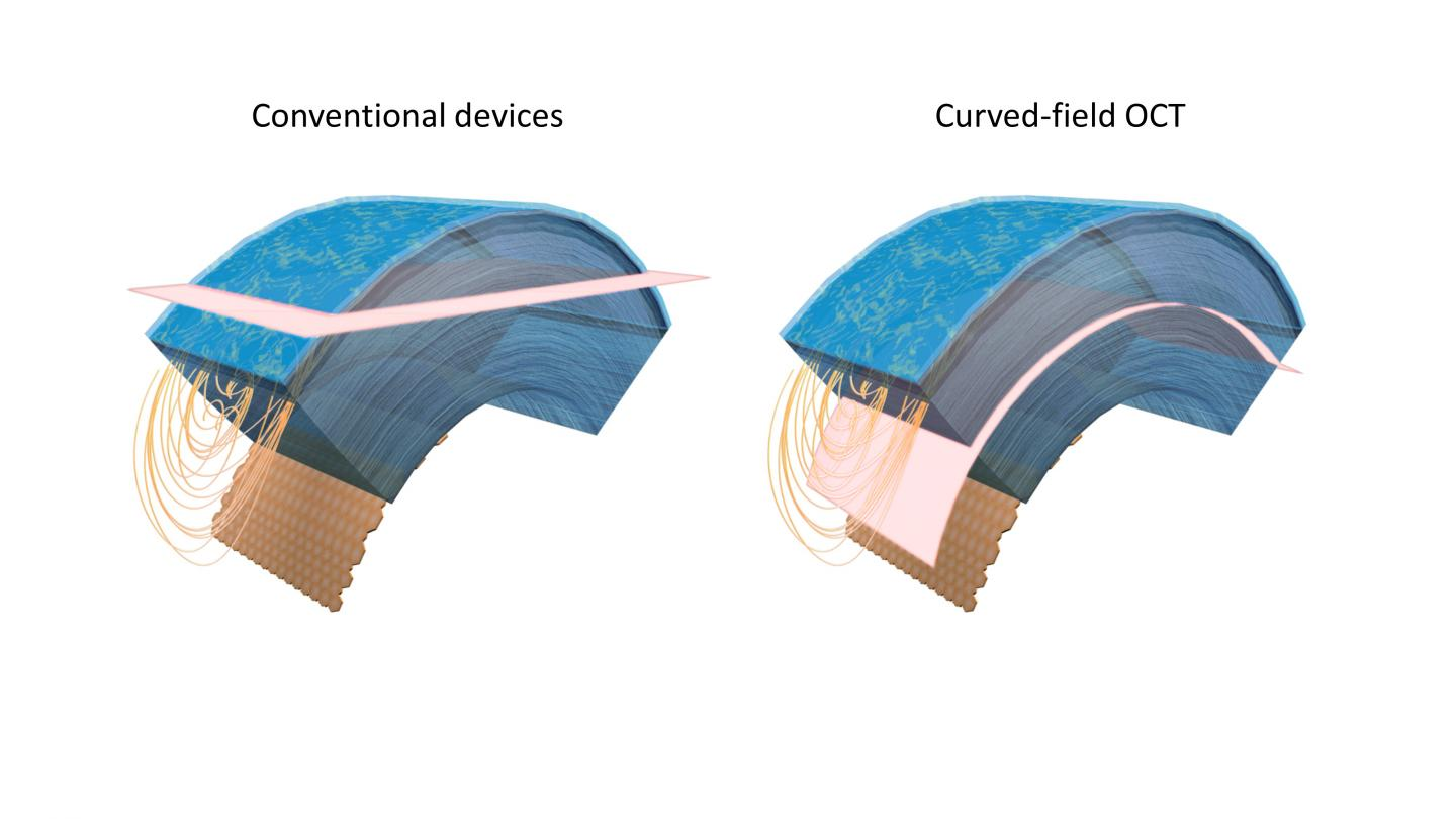 OCT Instrument Increases Field of View to Capture Optical Sections Matching Curvature of the Cornea