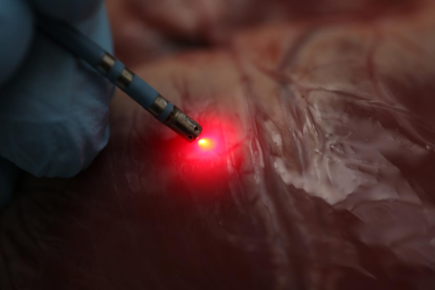 Spectral Mapping of Heart Tissue Could Help Improve Ablation Therapy