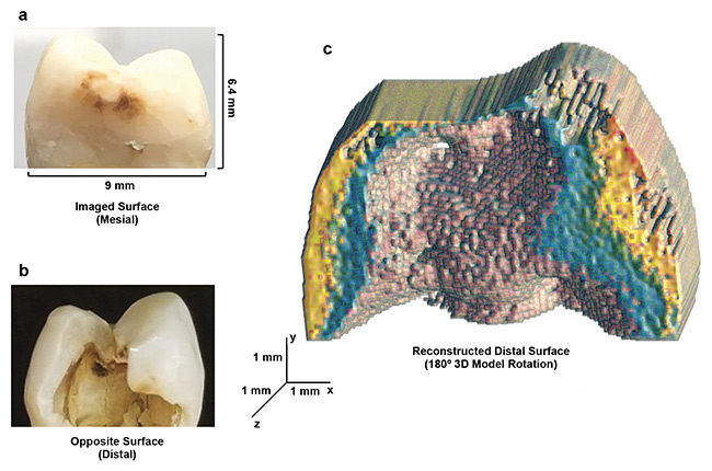 Figure 2. eTC-PCT 3D reconstruction of advanced dental decay. Mesial and distal surfaces, respectively, of a tooth with a large, cavity-like, carious lesion only visible from the distal surface (a, b). The 180° rotation of the 3D thermophotonic image taken from the mesial (outer) surface, showing the reconstructed distal face (c). The data clearly demonstrates the eTC-PCT structural modeling and boundary delineation capability. Courtesy of University of Toronto.