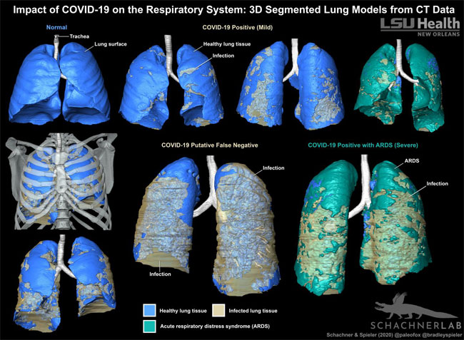 An LSU Health New Orleans radiologist and evolutionary anatomist demonstrate that 3D models are a promising method for visually evaluating the distribution of COVID-19-related infection in the respiratory system. Courtesy of LSU Health New Orleans.