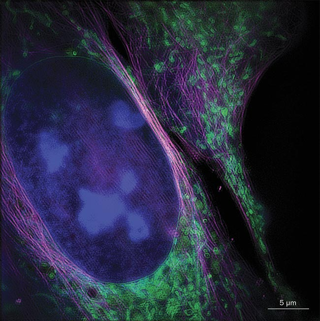 A three-color structured illumination micrograph (SIM) of a living bone cancer cell with nucleus (blue), mitochondria (green), and cytoskeleton (magenta). The image was acquired with a SIM system using instant image reconstruction. Courtesy of Andreas Marwirth/Bielefeld University.