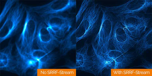 Super-Resolution Microscopy Technology
